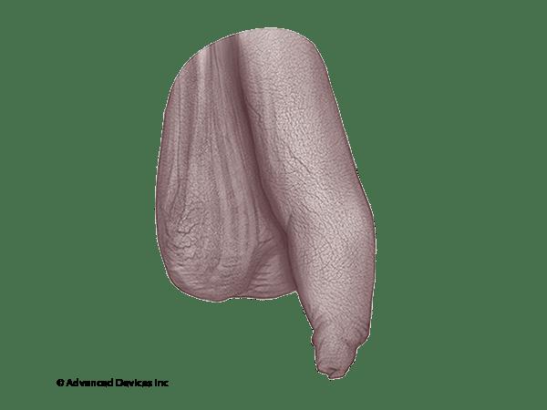 foreskin restoration coverage index penis
