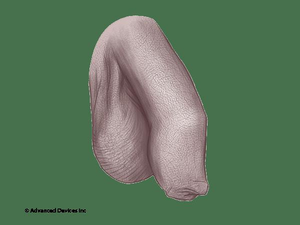 circumcision restoration foreskin penis